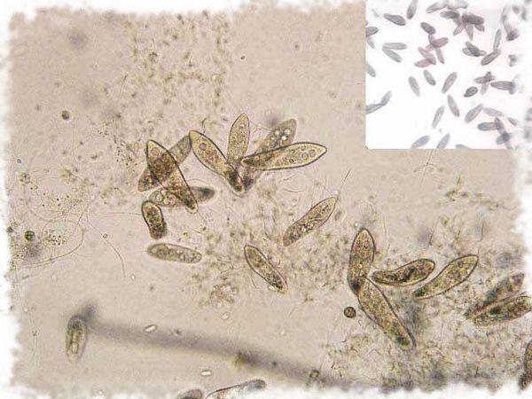 жива прашина под микроскоп
